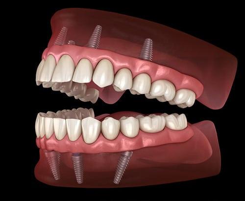 Dental Crowns in Newmarket