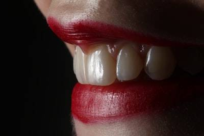 What TO Do If I Have A Broken Tooth?