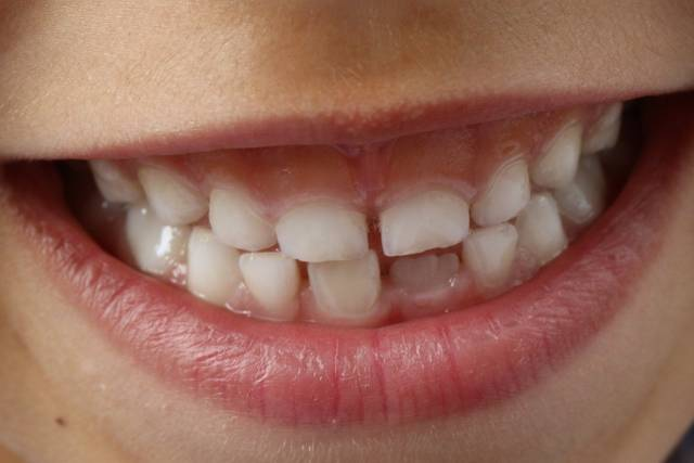 Home Remedies For Tooth Pain, Causes, Relief for Sore Teeth